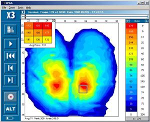 XSensor Druckverteilungsmesssystem für Therapie und zur Sitzoptimierung für Paraplegiker
